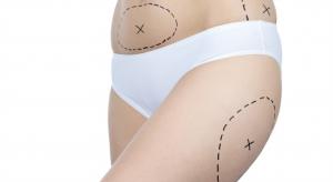 o que é vibrolipoaspiração dentro da cirurgia plástica