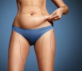 A lipoaspiração é uma cirurgia feita para emagrecer?